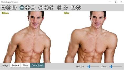 Body Plastic Surgery